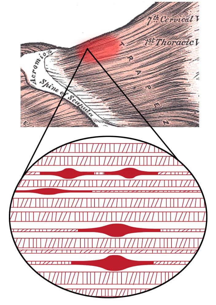 Manuelle Therapie - Triggerpunkt Therapie